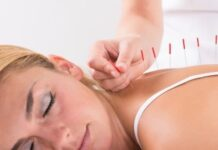 Acupuncture for Labour Induction