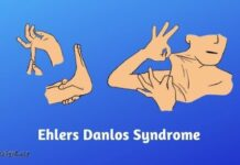 Recently Diagnosed with Ehlers Danlos Syndrome - These Tips Could Help You