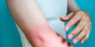 Best 10 Sunburn Treatments Instead of Botox Treatments
